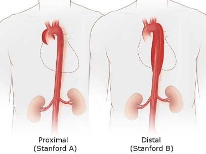 Aortic_dissection_types